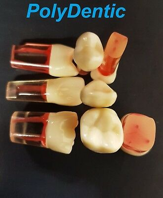 Dental Red Wax EndoTeeth for RCT Practice and Access opening Practice