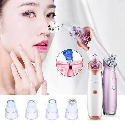 Facial Face Pore Blackhead Remover Vacuum Derma Suction Diamond Dermabrasion -US