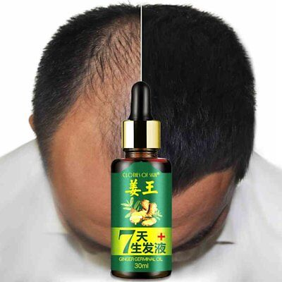 Fast Hair Growth Dense Regrowth Essence Treatment Women Men Anti Loss RE