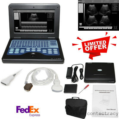 US Fedex Digital ultrasound scanner Portable laptop machine convex,linear Probe