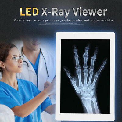 AC 100-240V LED X-Ray Viewer Film Illuminator Light Panel EU Plug 360*240mm GL