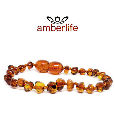 Baltic Amber Teething Bracelet/Anklet Baby Sizes Knotted MINI BEADS 13-17cm