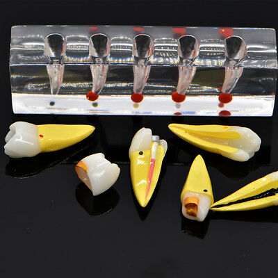 Endodontic Pathology Study Model Tooth Pulp Disease Model for Root Canal Dental