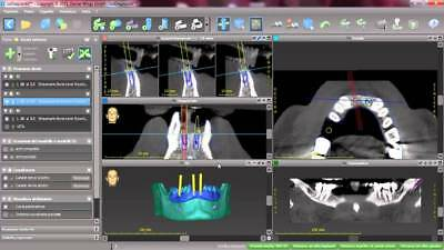 CoDiagnostix Client Implant planning and surgical guide production software