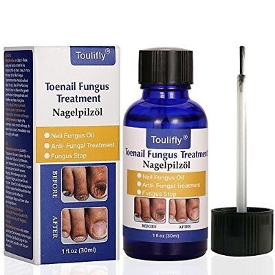BEST FINGER TOE Nail Fungus Treatment, Nail Drops Remove Stop Fungal  infection