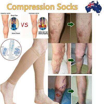 Medical Compression Stockings Thigh High DVT Varicose Sock Support Travel Flight