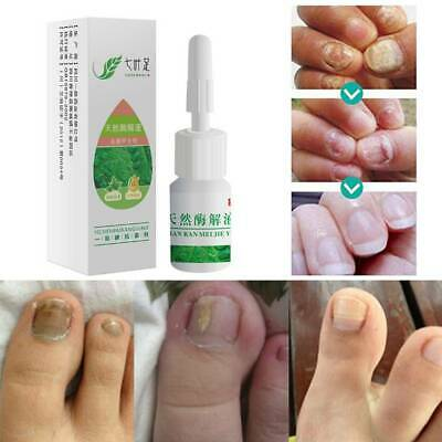 NAIL FUNGUS FUNGAL Infection Treatment Rechargeable Laser