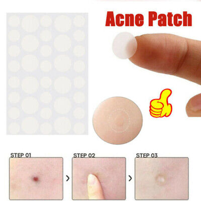 36Pcs Skin Tag & Acne Patch - Hydrocolloid Acne and Skin Tag Remove Patches
