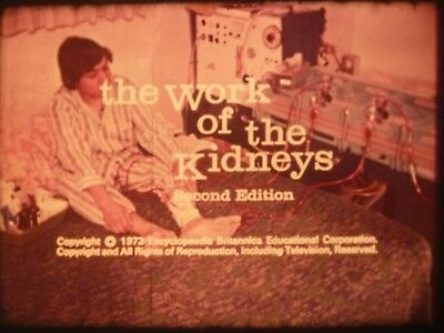 The Work Of The Kidneys 1972 16mm short