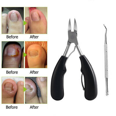 Pro Toe Nail Clippers Cutters Nippers Chiropody Heavy Duty Thick Nail File u7g