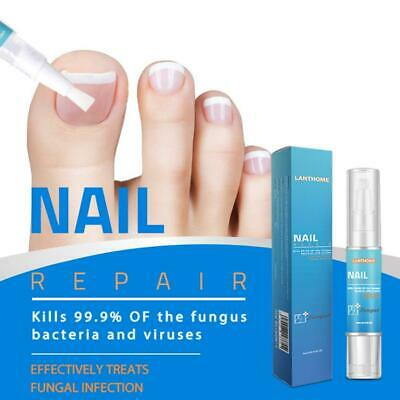 Lanthome Anti Fungal Nail Treatment Finger Care Fungus Repair Liquid Pen YO