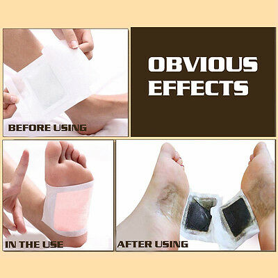 10 Pairs Cleansing Patches Detox Foot Pads Patch Detoxify Remove Body Toxins