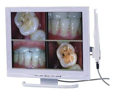 Dental ORC-01A Intraoral Camera with Sony HAD CCD Image Sensor & 15 inch Monitor