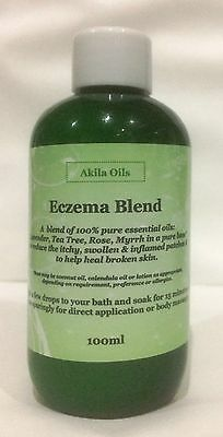 Eczema Psoriasis Skin Healing Blend 100ml Select from Lotion or Oil Base