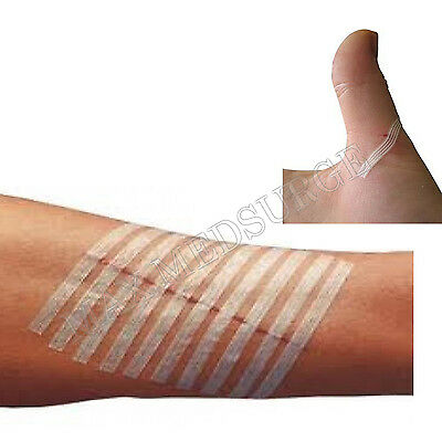 Sterile SKIN CLOSURE STRIPS, 3mm x 75mm or 6mm x 75mm, Wound Dressing CE Marked