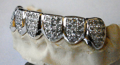 14K Solid Yellow Gold Custom fit 6pc bottom REAL Diamond GRILLZ Gold Teeth