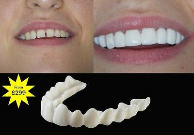 Clip In Veneers The Snap On Smile