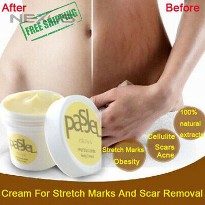 The Best Removal Stretch Marks Anti Ageing Pregnancy Cellulite Cream 50 gr 2017