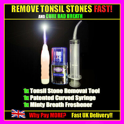 Cure Bad Breath Permanently With Tonsil Stones LED Removal Tool Kit - UK Seller