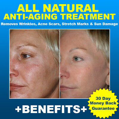 Natural ANTI-AGING Treatment- Remove Wrinkles, Scars, Stretch Marks & Sun Damage