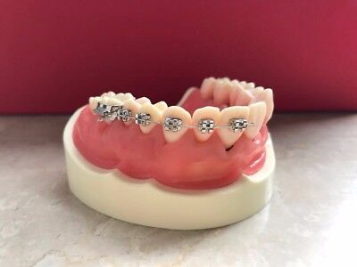 Nissin Dental Products Studie Modell Übungsmodelle KFO-Brackets Putzmodell