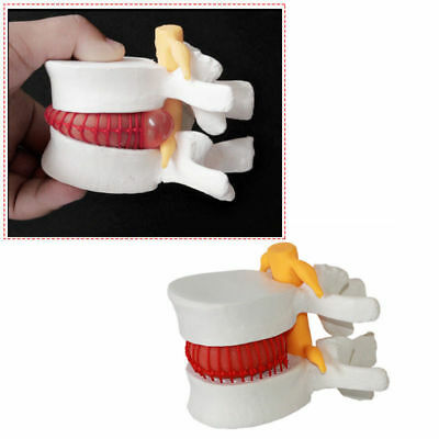 Human Lumbar Disc Herniation Demonstration Model of Lumbar Vertebral Spine Teach