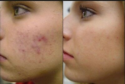 Acne Spot Scar Stretch Mark Tissue Treatment Remover And Reducer 30g Free Post