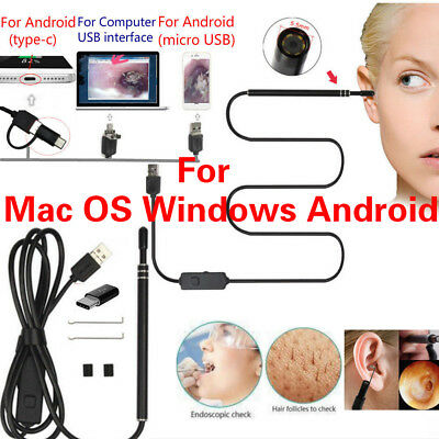 Digital USB LED Otoscope Ear HD Mini Camera Scope Earwax Removal Kit for MAC OS