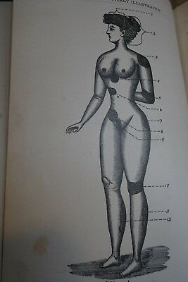 1893 Self Published Medical Book Diseases RX Illustrated Bucyrus Ohio