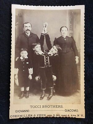Circus Freak Sideshow Cabinet Photo of Conjoined Twins