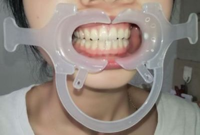 2X Large Dental Teeth Cheek Lip Retractor Mouth Opener C-Shape with Handle White