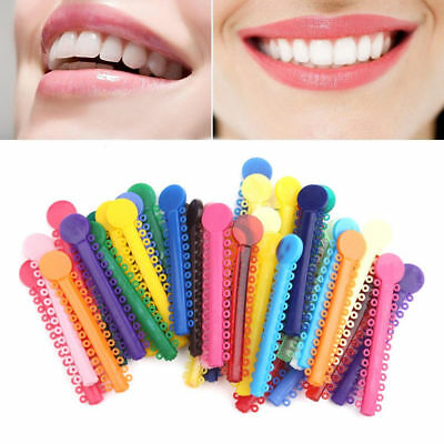 Dental Orthodontic Elastic Crystal Colour Bands Gum Ligature Ties Medical Braces