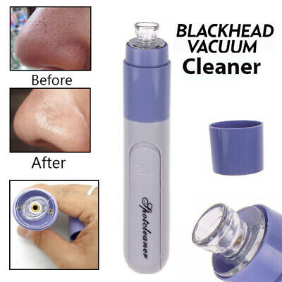 Electric Facial Pore Cleaner Spot Cleanser Face Acne Suction Blackhead Remover