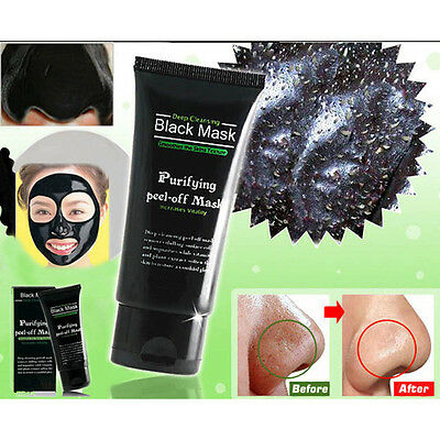 Blackhead Remover Nose Face Mask Strip Cleansing Acne Pore Deep Black Mud Hot GL