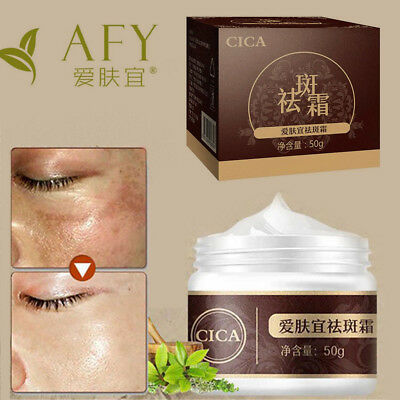 50g Fade Blemish Reduce Freckle Whitening Cream Melasma Treatment Facial Care