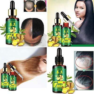 7 Days Hair Growth Care Ginger Dry Damaged Hairs Essential Oil Nourishing Noted