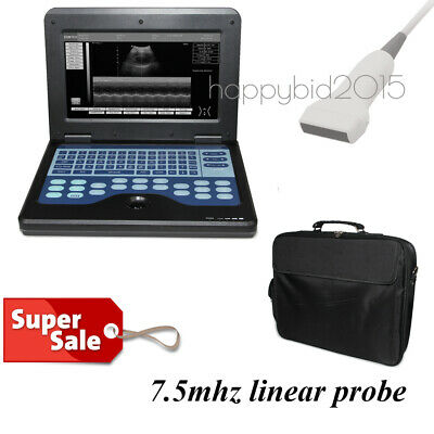 CMS600P2 Digital ultrasound scanner Portable laptop machine for Human Use