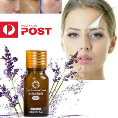 Ultra Brightening Spotless Oil Skin Care Natural Pure Remove Ance UE