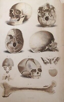 Anatomy Medical Print Wall Art Picture Giclee Surgery Educational Teaching Skull