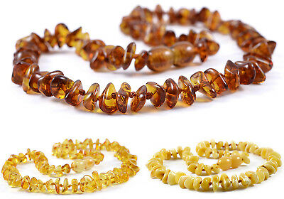 Amber Necklace Teeth Pain -Cognac Lemon White - Baby & Adult - 2nd PIECE 50% OFF