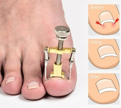Ingrown Toenail Manicure Pedicure Foot Care Correction Brace Tool Toe Clipper UK