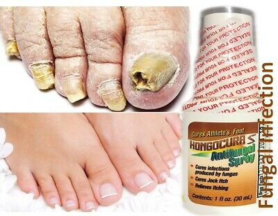 AntiFungal Nail Treatment Toe Nail Finger Fungus Infection fast Cure natural san