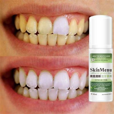 60ml Teeth Whitening Essence Liquid Oral Hygiene Cleaning Serum Stains Remove