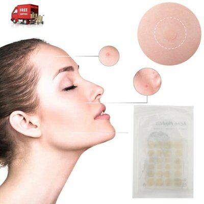 Acne Pimple Master Patch 24 Patches Face Spot Scar Care Stickers Invisible ZV