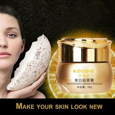 KOOGIS Women Skin Brightening Cream Facial Care Freckle Acne Spot Remover QCI〡