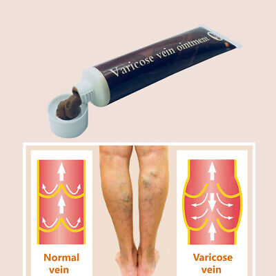 Varicose Veins Treatment Cream Effective cure Vasculitis Phlebitis Spider Veins