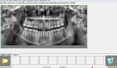 Gendex VixWin Imaging Software - DENTAL IMAGING *Latest Version*