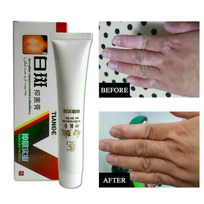 Chinese Herbal Cream for Vitiligo White Spots Leukoplakia Hot
