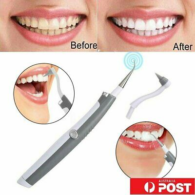 Electric Sonic Dental Tooth Stain Polisher Teeth Whitener Plaque Remover UE