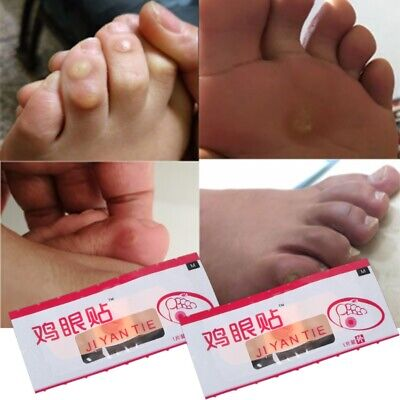 New 6Pcs Foot Patch Corn Treatment Removal Calluses Medical Plaster Health Care
